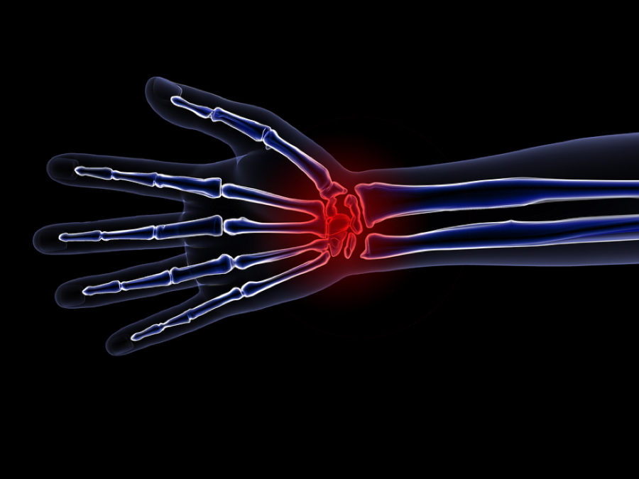 Carpal Tunnel : How Can I Prevent Carpal Tunnel Syndrome? It is difficult to prevent CTS, but recognizing the most common risk factors and minimizing stress on your wrists may help lower your chance of developing this condition.
